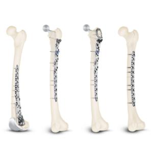 Sistemul NCB® Periprosthetic Femur pentru tratarea fracturilor periprotetice