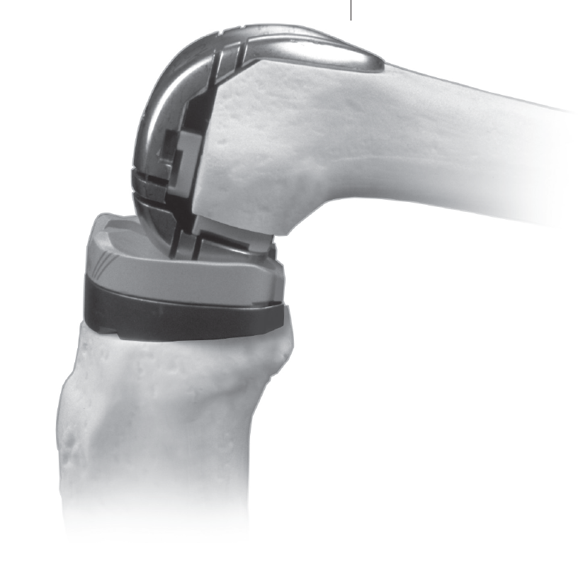 Revision LCCK Instrumentation Surgical Technique for Legacy Constrained Condylar Knee